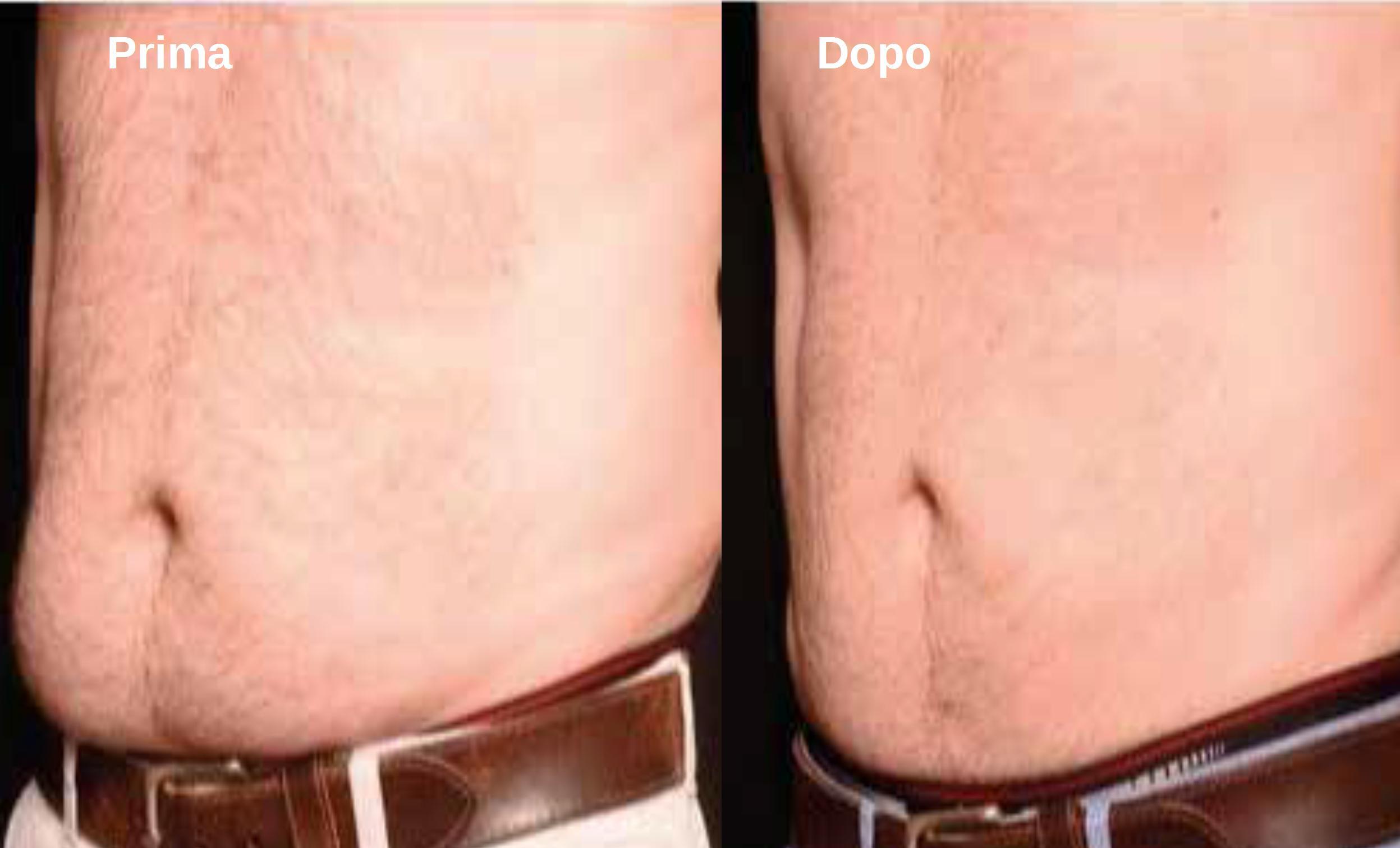 effetti-trattamento-liposony-prima-dopo-2